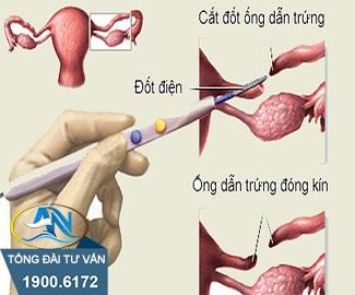 Thắt ống dẫn trứng